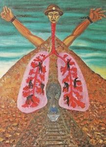 Silicosis HUANKA Potosi 1970