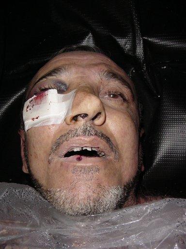 Abou Ghraib, torture